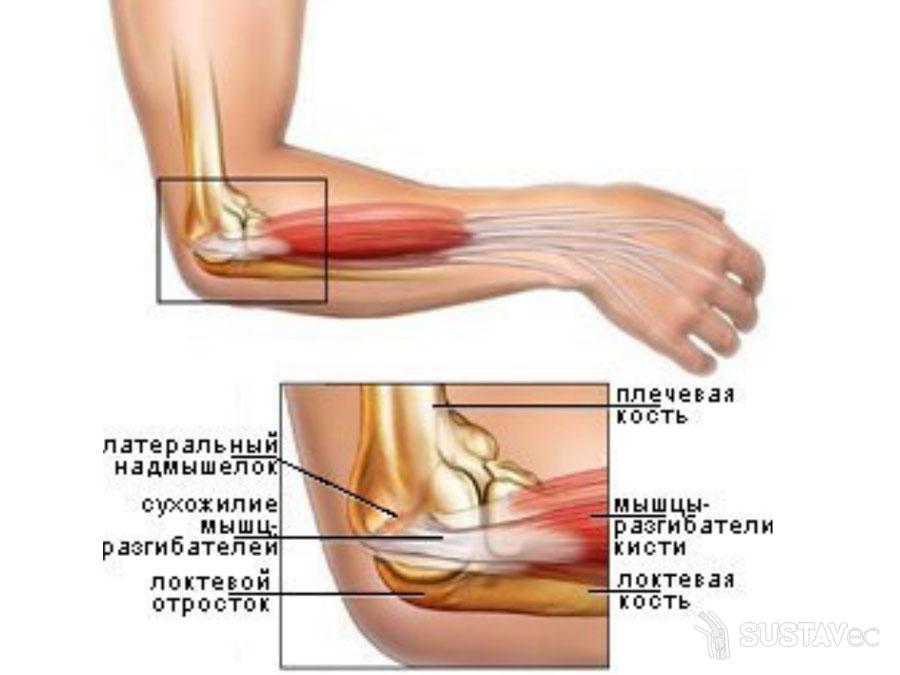 Причины болей в руке от локтя до кисти 56-5