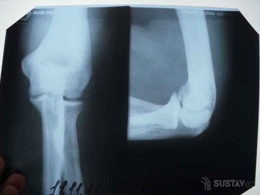 Причины болей в руке от локтя до кисти 56-6