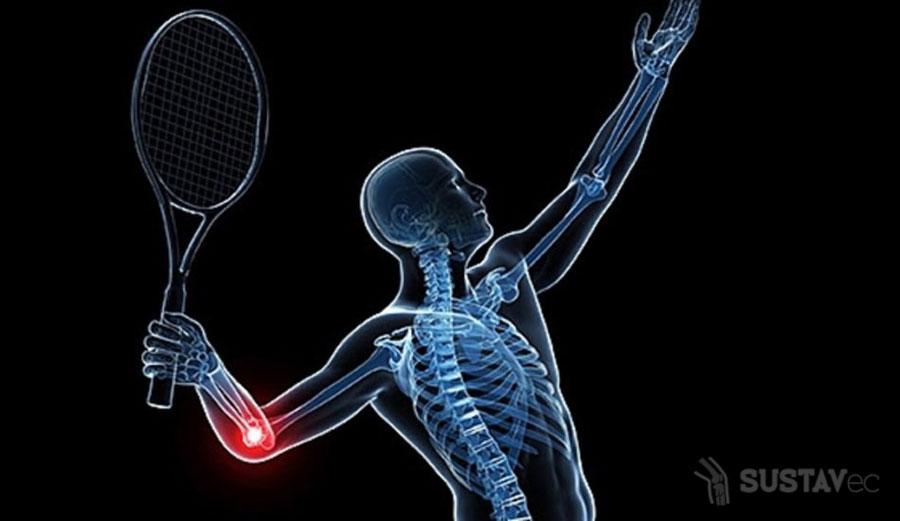 Болит локоть при сгибании и разгибании: возможные причины и последствия 57-2