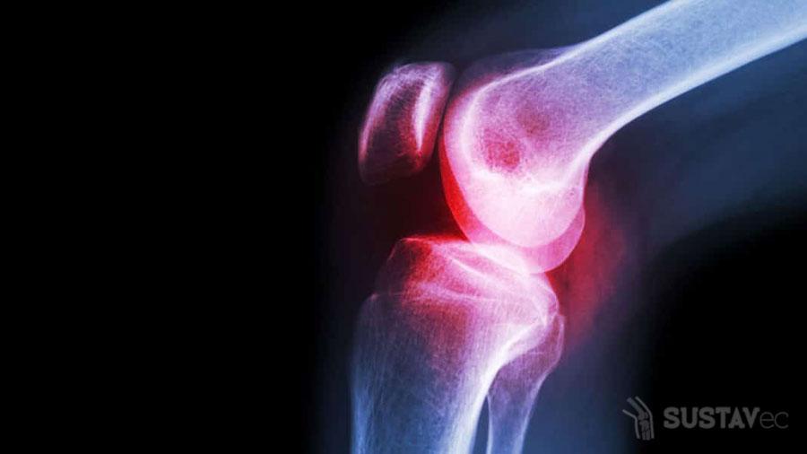 Болит локоть при сгибании и разгибании: возможные причины и последствия 57-4