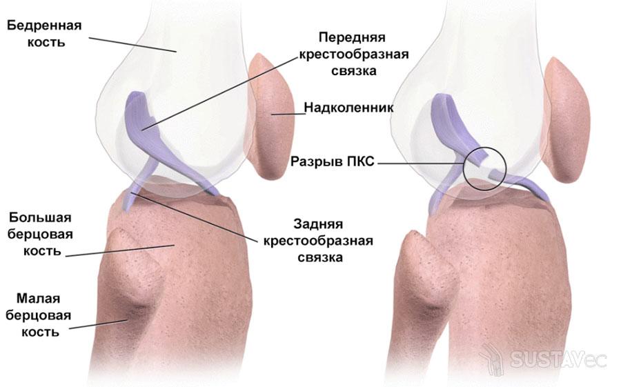 Симптомы и лечение растяжения связок локтевого сустава 59-1