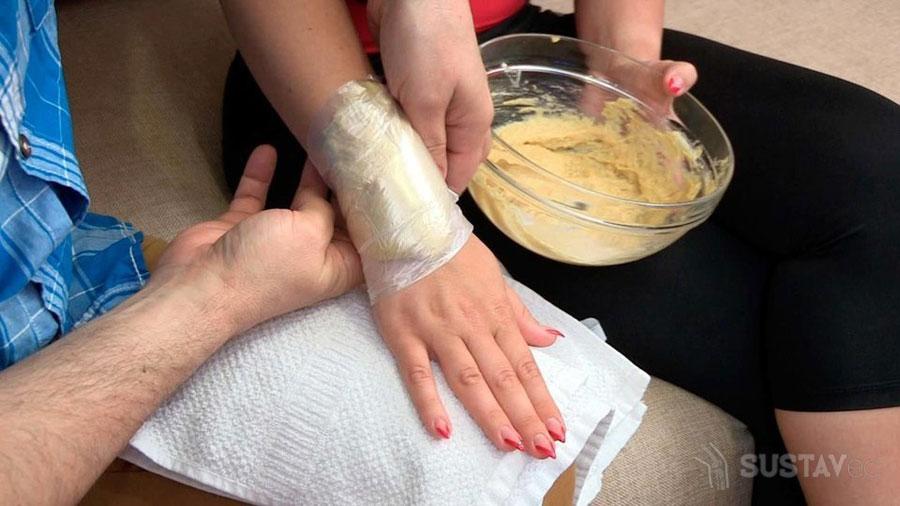 Симптомы и лечение растяжения связок локтевого сустава 59-5