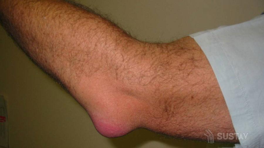 Что делать при боли в локте при нагрузке и надавливании 6-1