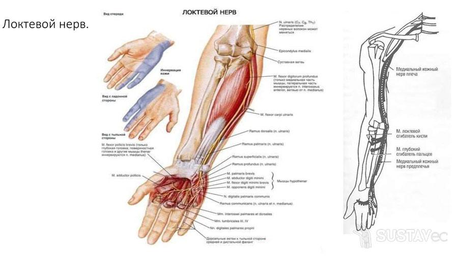Локтевой нерв и его лечение 61-2