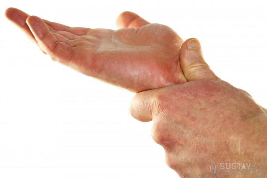 Локтевой нерв и его лечение 61-3
