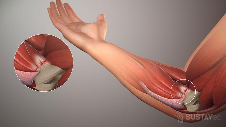 ТОП 9 методов лечения эпикондилита локтевого сустава 7-1