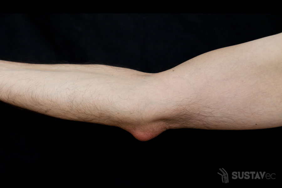 ТОП 9 методов лечения эпикондилита локтевого сустава 7-2