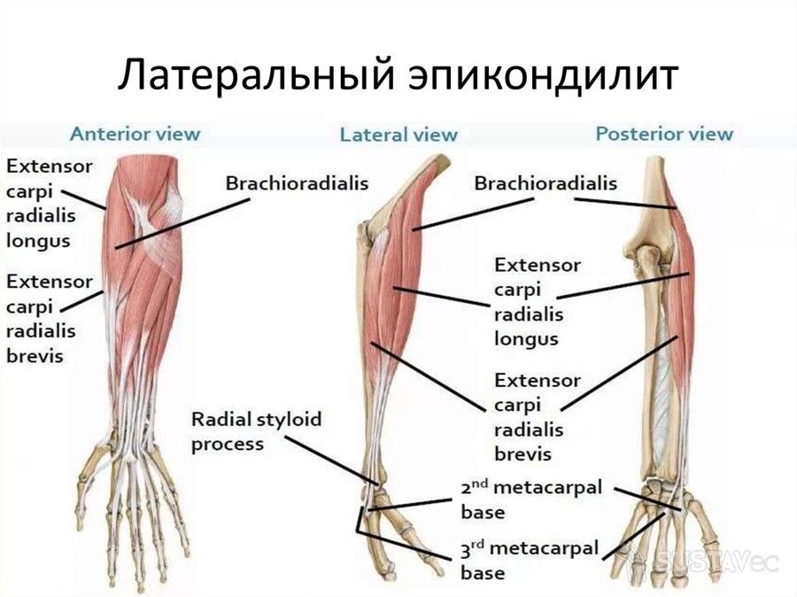 ТОП 9 методов лечения эпикондилита локтевого сустава 7-3
