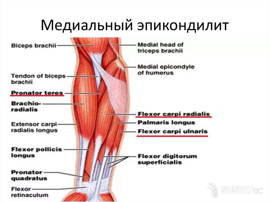ТОП 9 методов лечения эпикондилита локтевого сустава 7-4
