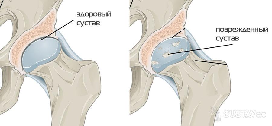 Абсолютные и относительные противопоказания к эндопротезированию тазобедренного сустава 1-2