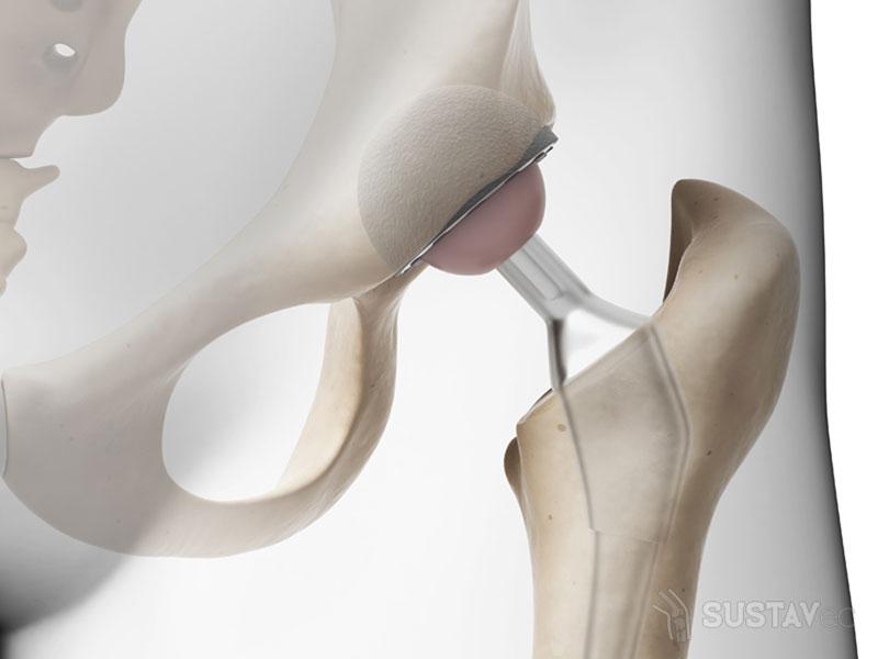 Абсолютные и относительные противопоказания к эндопротезированию тазобедренного сустава 1-5