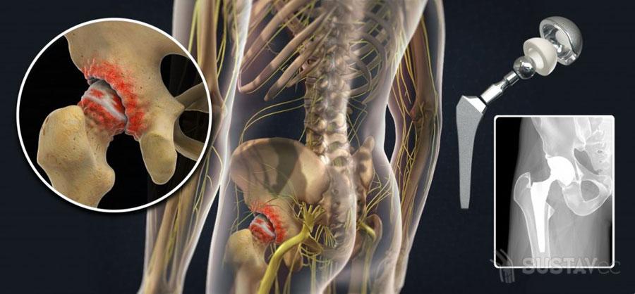 Что нельзя делать после эндопротезирования тазобедренного сустава 10-2
