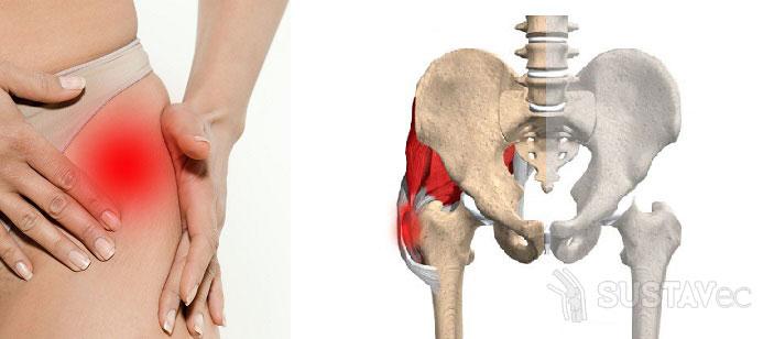 Симптомы и лечение воспаления тазобедренного сустава 11-2