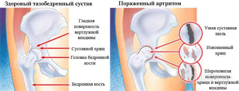 4 основных причины хруста в тазобедренном суставе 12-2