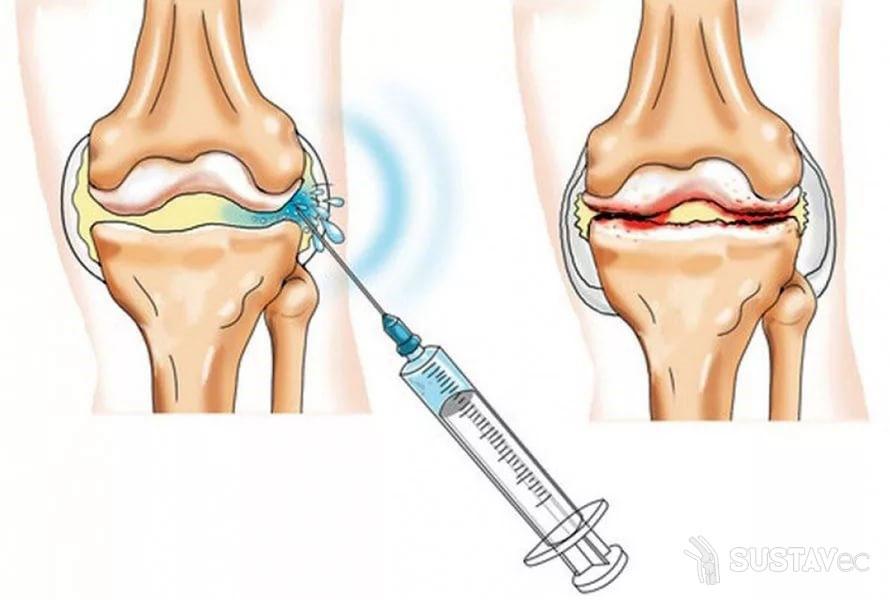 ТОП 4 внутрисуставных инъекций в тазобедренный сустав 2-4