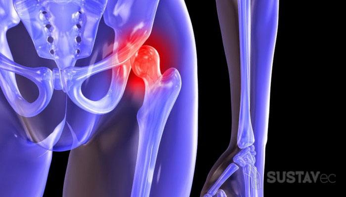 Лечение Алмагом тазобедренного сустава 3-4