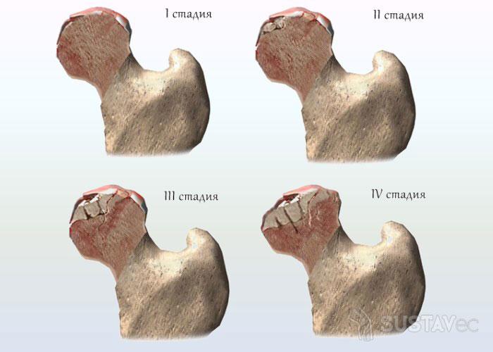 Что делать если ноют колени и тазобедренный сустав 6-4