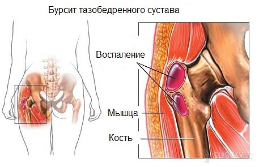 Причины болей тазобедренного сустава с левой стороны 7-2