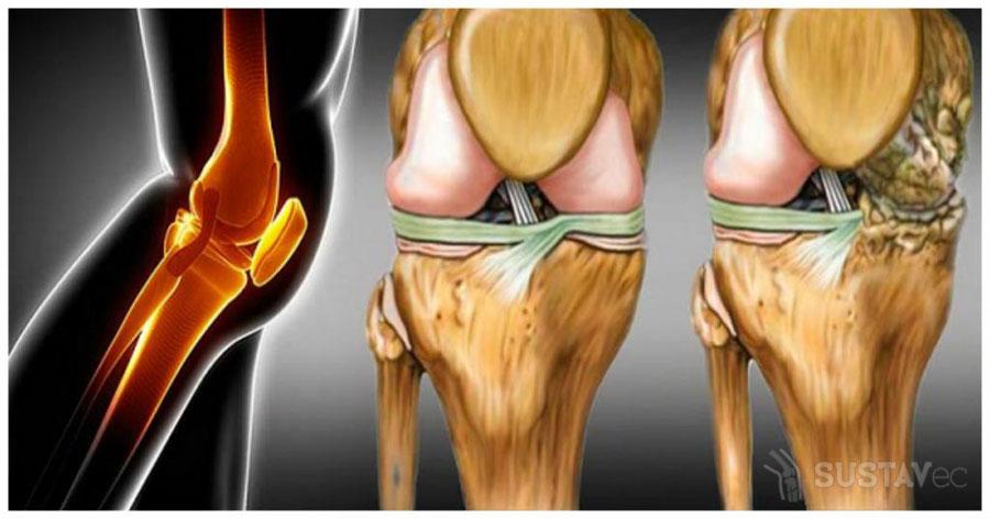 6 методик восстановления хрящевой ткани в тазобедренном суставе 8-4